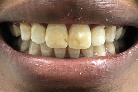 After Fixed Metal Braces at iDental London