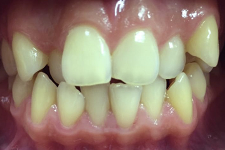 Before Traditional Metal Braces at iDental